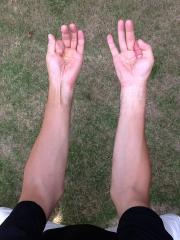 ゴルフ腕の外側筋肉