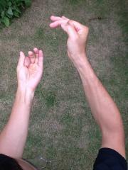 親指側の筋肉